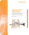 Ankle Arthroscopy Approaches